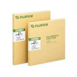 Röntgen Filmi Fujifilm 35x43 Yeşile Hassas